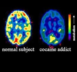 effects of cocaine abuse